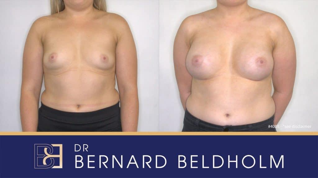 Patient 4008 Breast Augmentation