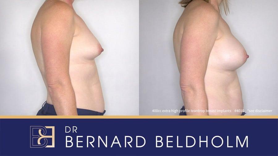 Patient 4010 Breast Augmentation