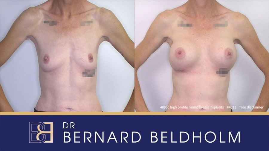 Patient 4011 Breast Augmentation