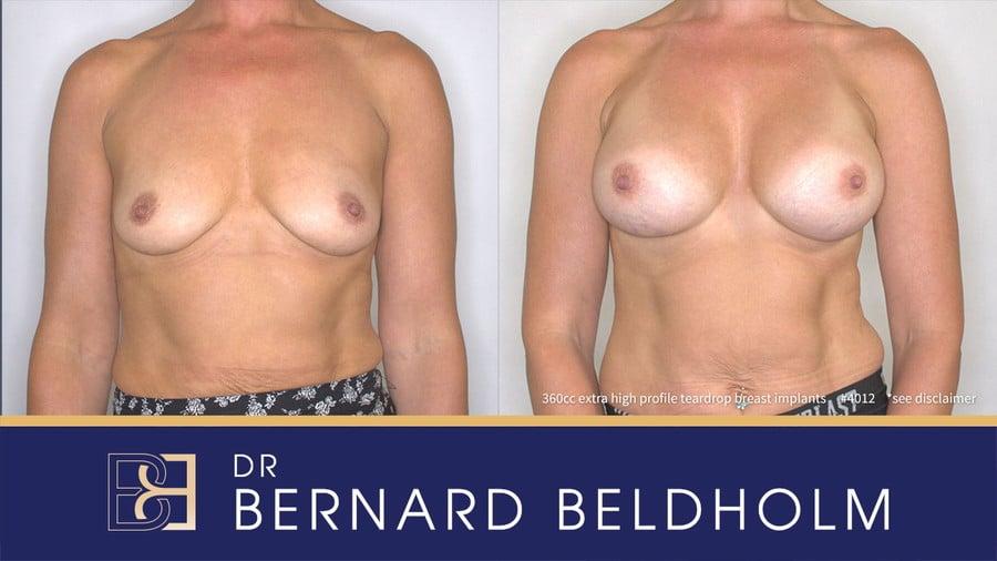 Patient 4012 Breast Augmentation