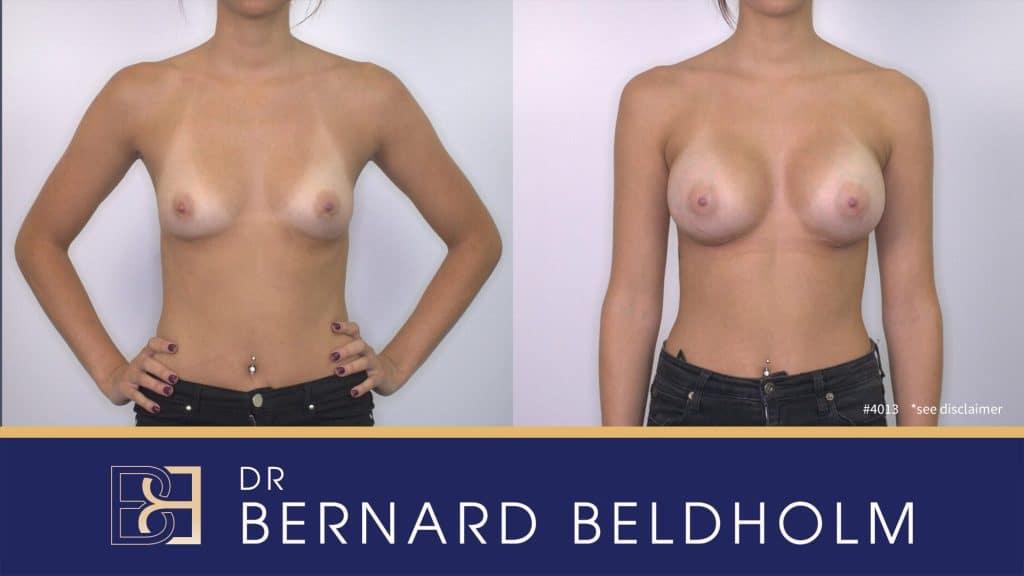 Patient 4013 Breast Augmentation