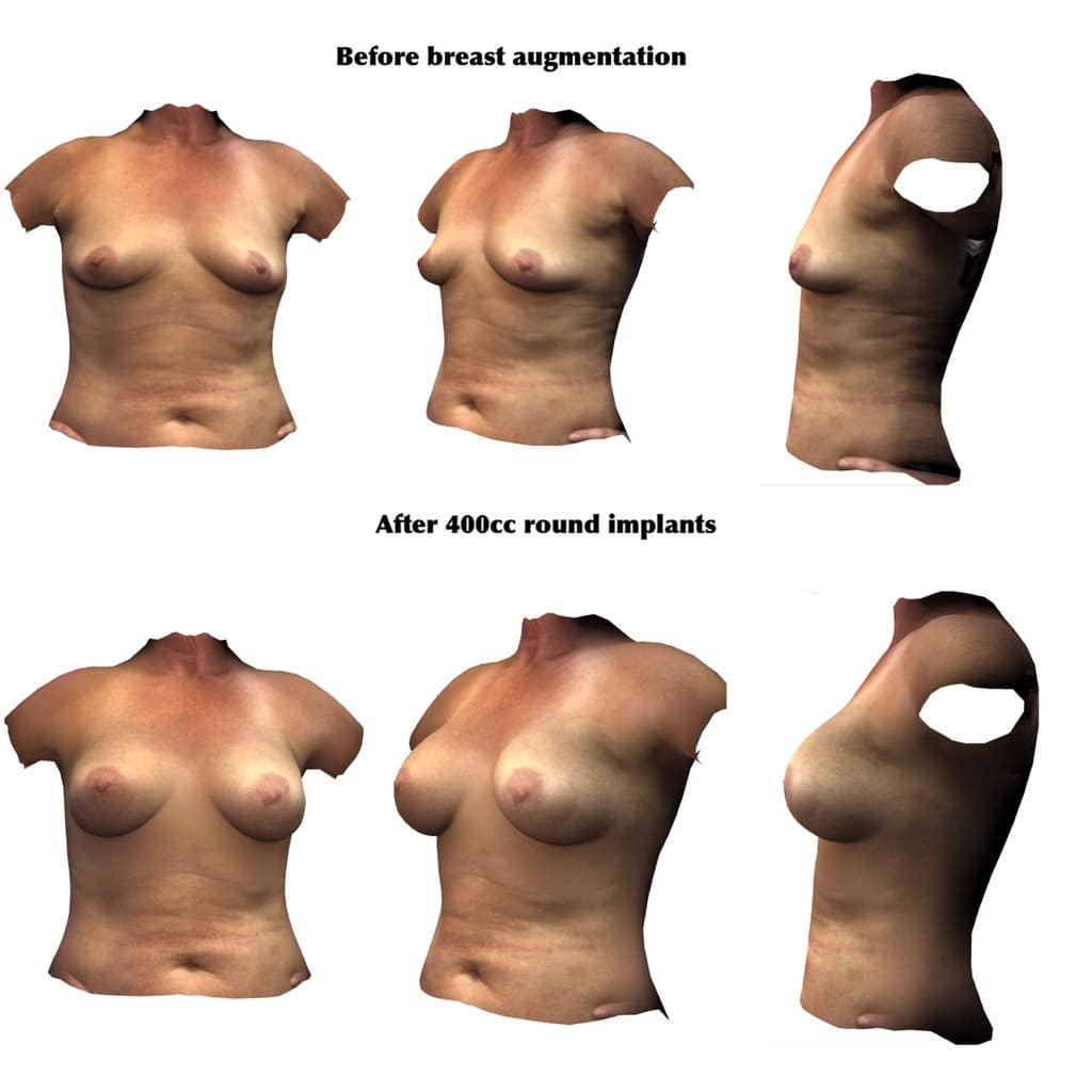 Breast Implant Before Breast Augmentation