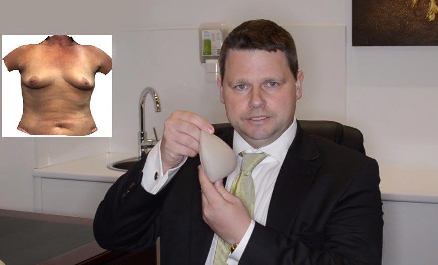 Dr Beldholm Showing Breast Implants