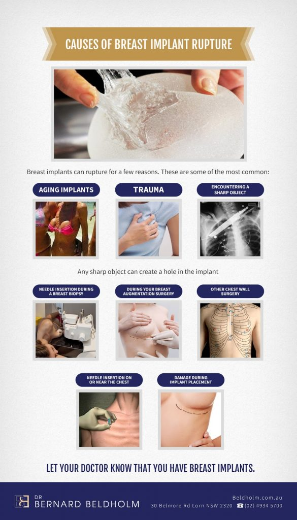 Causes of breast implant rupture - Infographic