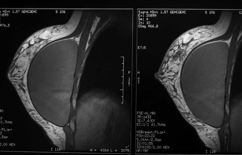 Breast Implant Cancer Risk