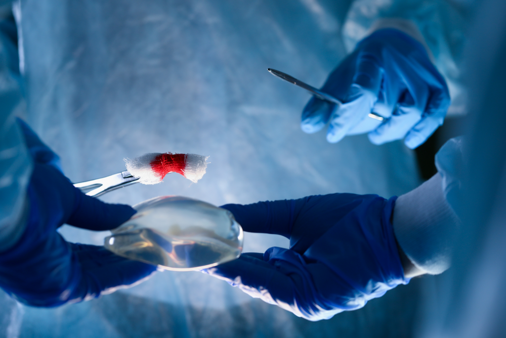Getting Breast Augmentation Surgery