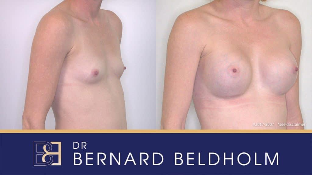 Patient 2017-2007 Breast Augmentation