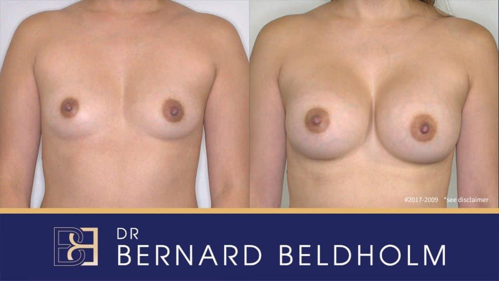 Patient 2017-2009 Uneven Breast Implants