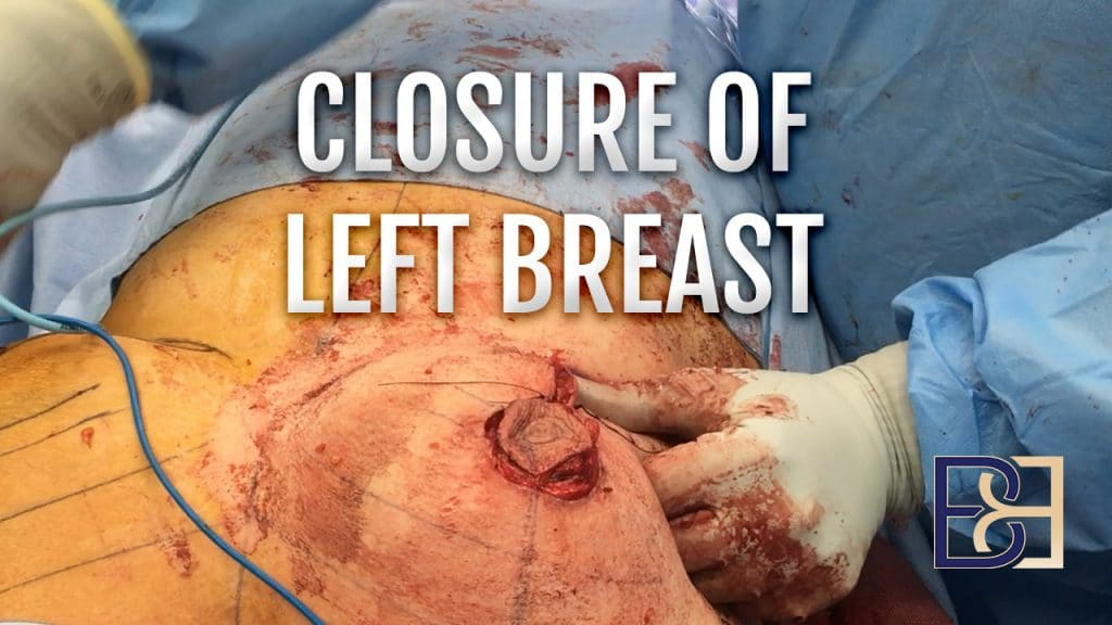 Breast Reduction - Closure of Left Breast