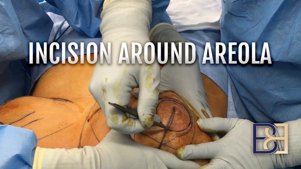 Breast Reduction - Incision Around Areola